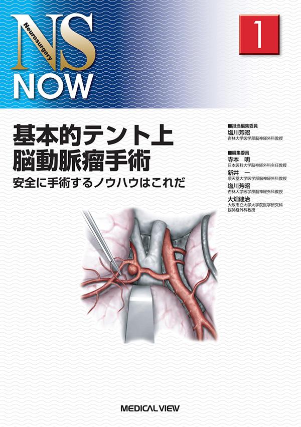 動脈 手術 脳 瘤