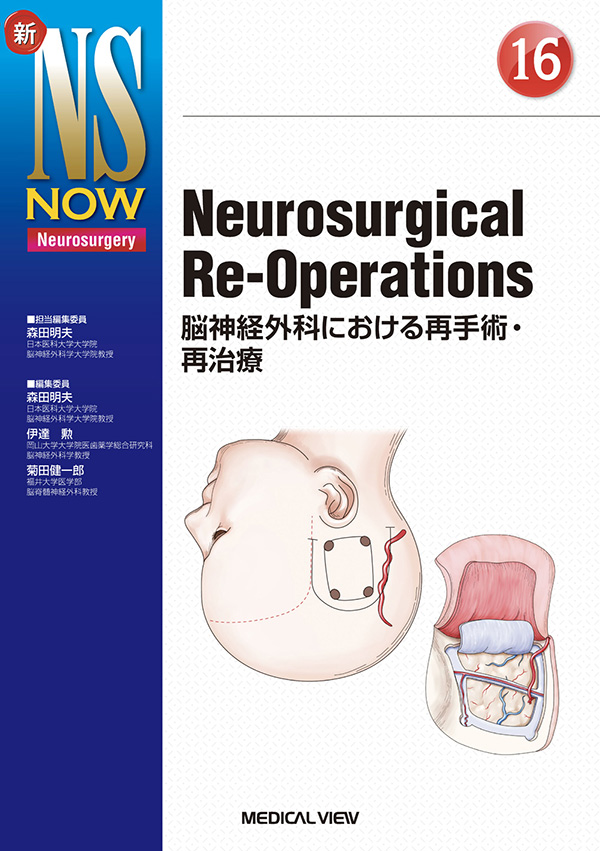 Neurosurgical Re-Operations